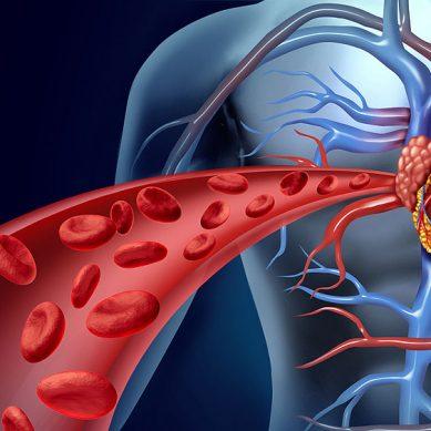 Procedure chirurgiche in pazienti in terapia anticoagulante e/o antiaggregante, documento di consenso