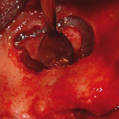 Rialzo del seno mascellare con approccio laterale: finestra ossea piccola vs finestra grande. Studio clinico randomizzato split-mouth
