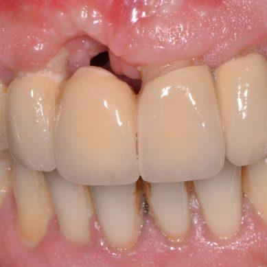 Metodo semplificato per la valutazione del rischio parodontale