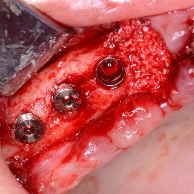 Osteointegrazione degli impianti posizionati in condizioni sterili vs condizioni di pulito