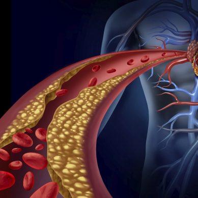 Nuove terapie per la ipercolesterolemia familiare