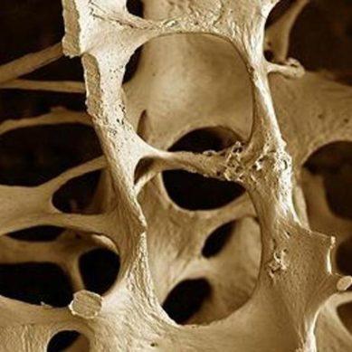 Osteoporosi sempre fanalino di coda della spesa farmaceutica.