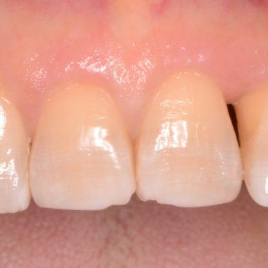 Linee guida per prevenzione e controllo di parodontite e diabete