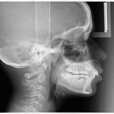 Trattamento  ortodontico con estrazioni: le linee guida