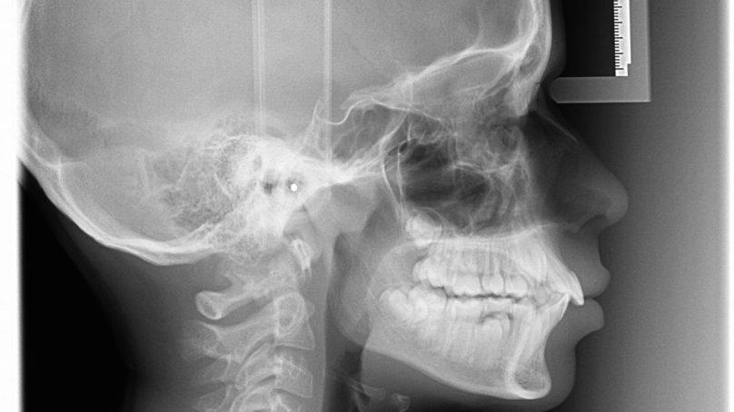 Trattamento  ortodontico con estrazioni: il dibattito