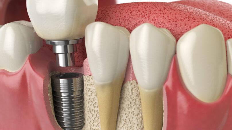 Odontoiatria, revisione narrativa di cinquant'anni di implantologia